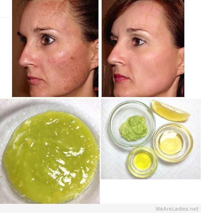 avocado mask for face